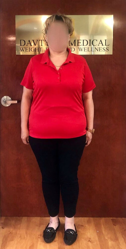 A-G-Gastric-Sleeve-Bariatric-Surgery-After-Results-At-Davtyan-Medical-Weight-Loss-And-Wellness-Beverly-Hills-Rancho-Cucamonga-LA