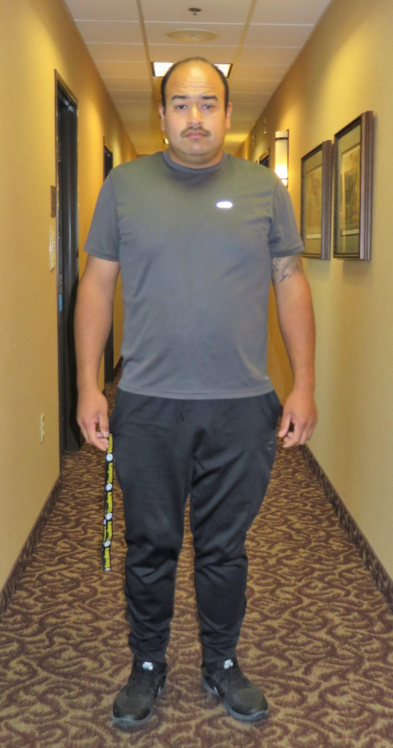Abe-M-Bariatric-Surgery-After-With-Lap-Band-Surgery-Results-At-Davtyan-Medical-Weight-Loss-And-Wellness-Los-Angeles