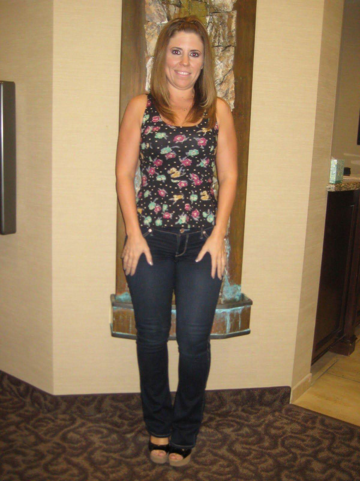 """<span class=""""hide_09"""">Bariatric Surgery Before and After - Elizabeth D.</span> Lap-Band Los Angeles"""