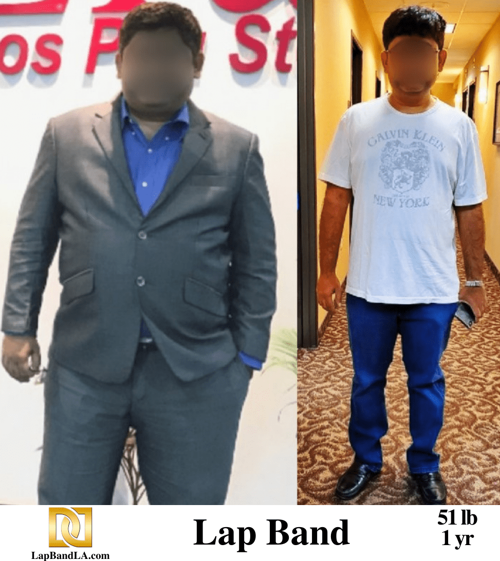 """<span class=""""hide_09"""">Bariatric Surgery Before and After – K.K.</span> Lap-Band Los Angeles"""