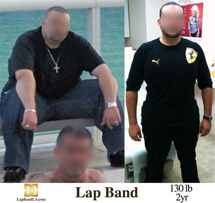 """<h1 class=""""hide_09"""">Bariatric Surgery <br>Before and After - M.T.</h1> Lap-Band Los Angeles"""