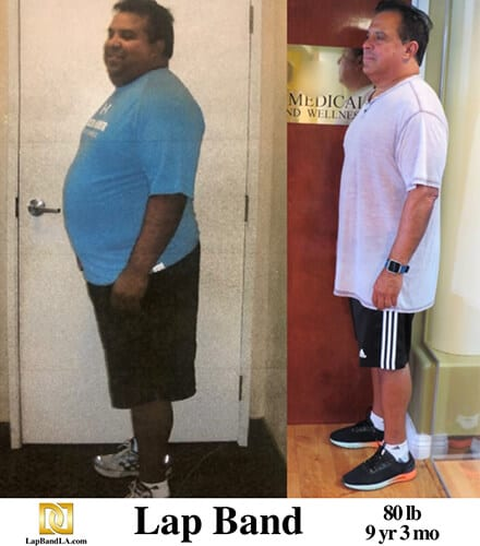 """<h1 class=""""hide_09"""">Bariatric Surgery <br>Before and After - Jamie P.</h1> Lap-Band Los Angeles"""