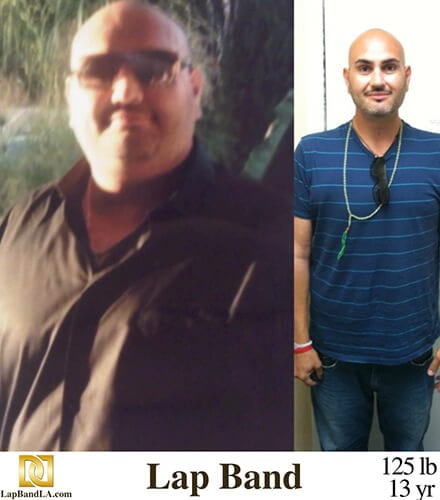 """<h1 class=""""hide_09"""">Bariatric Surgery <br>Before and After - Kashi T.</h1> Lap-Band Los Angeles"""