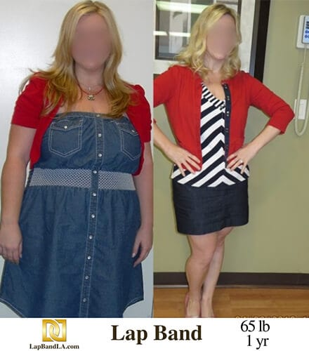 """<span class=""""hide_09"""">Bariatric Surgery Before and After – L.H.</span> Lap-Band Los Angeles"""