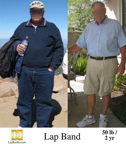 """<h1 class=""""hide_09"""">Bariatric Surgery <br>Before and After - Lowell S.</h1> Lap-Band Los Angeles"""
