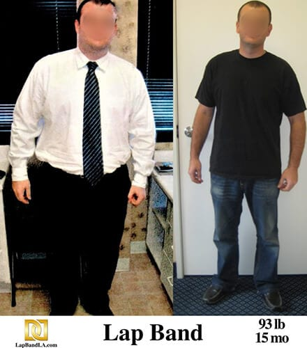 """<h1 class=""""hide_09"""">Bariatric Surgery <br>Before and After - Michael G.</h1> Lap-Band Los Angeles"""
