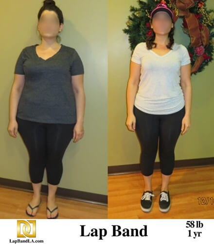 """<span class=""""hide_09"""">Bariatric Surgery Before and After – N.H.</span> Lap-Band Los Angeles"""