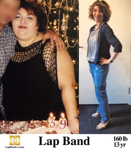 """<h1 class=""""hide_09"""">Bariatric Surgery <br>Before and After - Selina B.</h1> Lap-Band Los Angeles"""