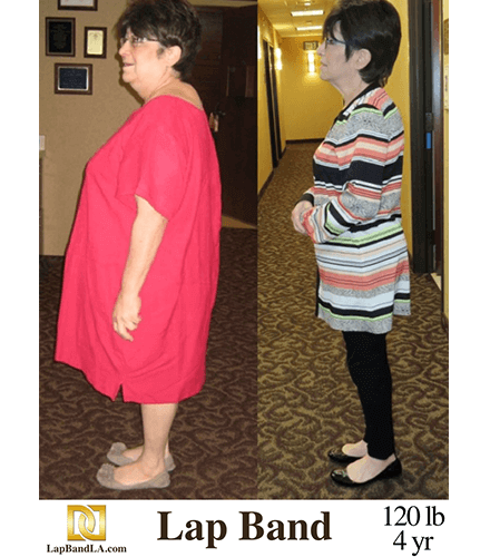 """<span class=""""hide_09"""">Bariatric Surgery Before and After – S.F.</span> Lap-Band Los Angeles"""