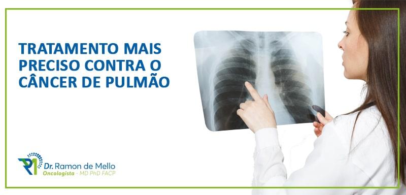 Em todo mundo, mais de 80% dos casos desse câncer estão associados ao consumo do tabaco e derivados e, no Brasil, ele é o segundo mais comum em homens e mulheres, excetuando-se o câncer de pele não melanoma.