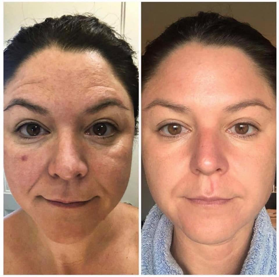 Modere CellProof Collagen Serum 90 day results