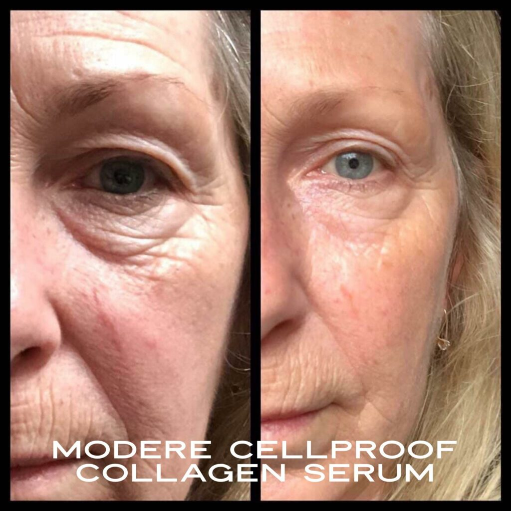 CellProof collagen serum Before and After photos of left face