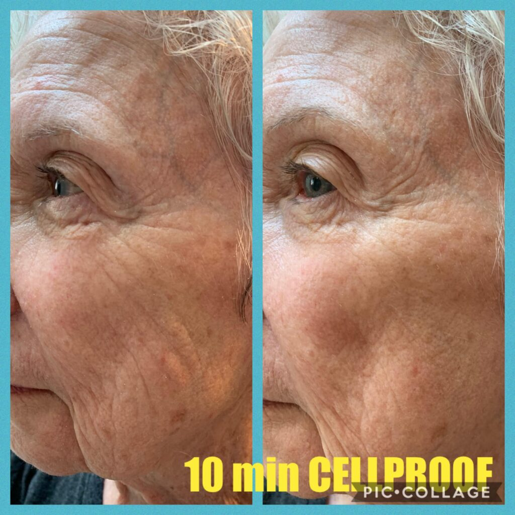 Modere CellProof Collagen Serum's 10 Minute Results