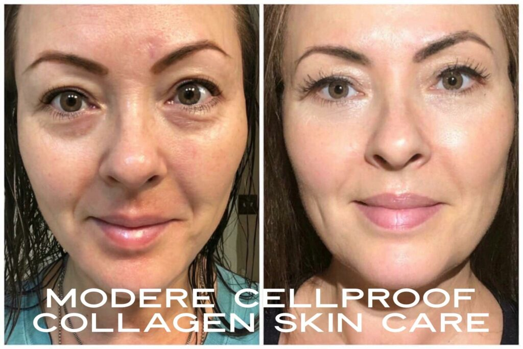 90 Day Modere CellProof Skin Care Results