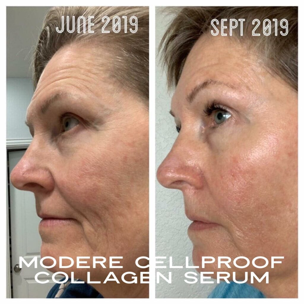 3+ Month Results with Liquid BioCell and CellProof Serum