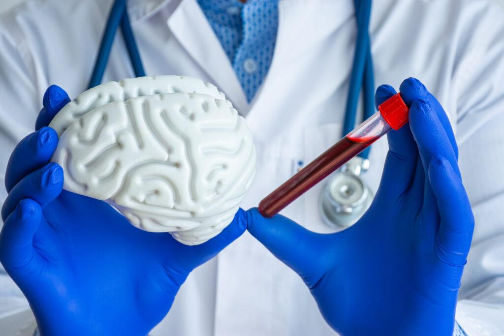 biomarkers biotech alzhemier's stocks