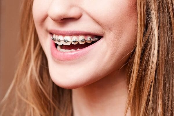 braces, teeth,