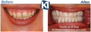 All on 4 - K1 Implant Choice