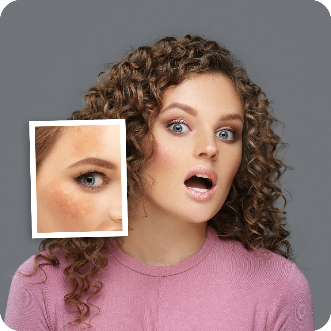 Melasma is a dark/hyperpigmented symmetric patches commonly on the face