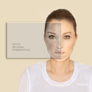 hyper pigmented symmetric patches commonly on the face
