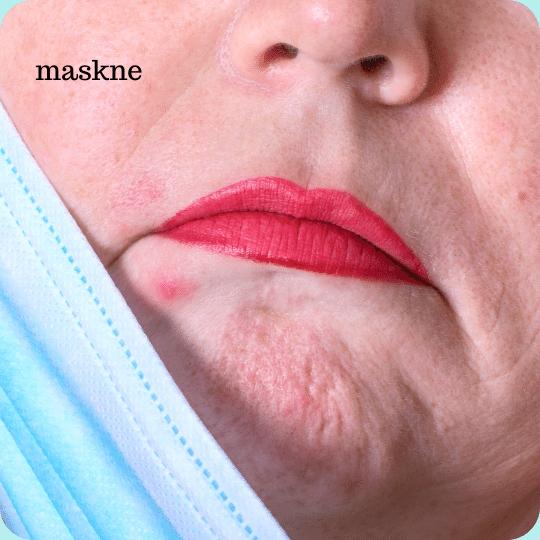 aggravate acne and maskne