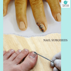 Nail surgeries are routinely performed by dermatologists