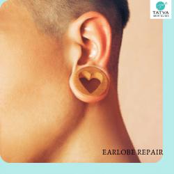 Sagging or splitting of ear piercing hole