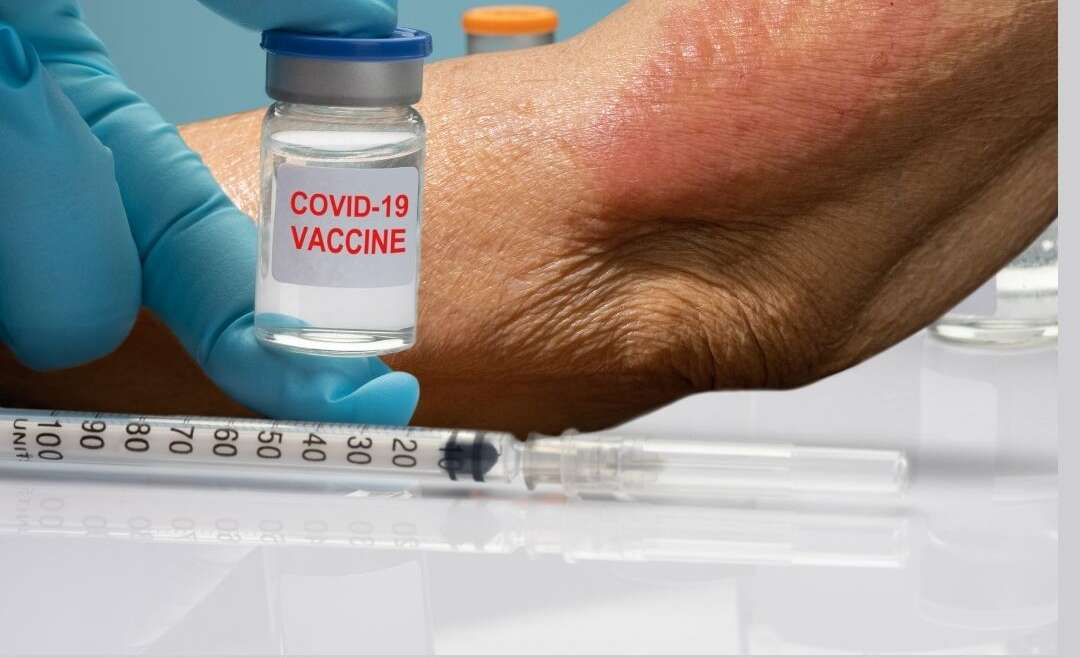 Skin rashes – COVID-19 patients