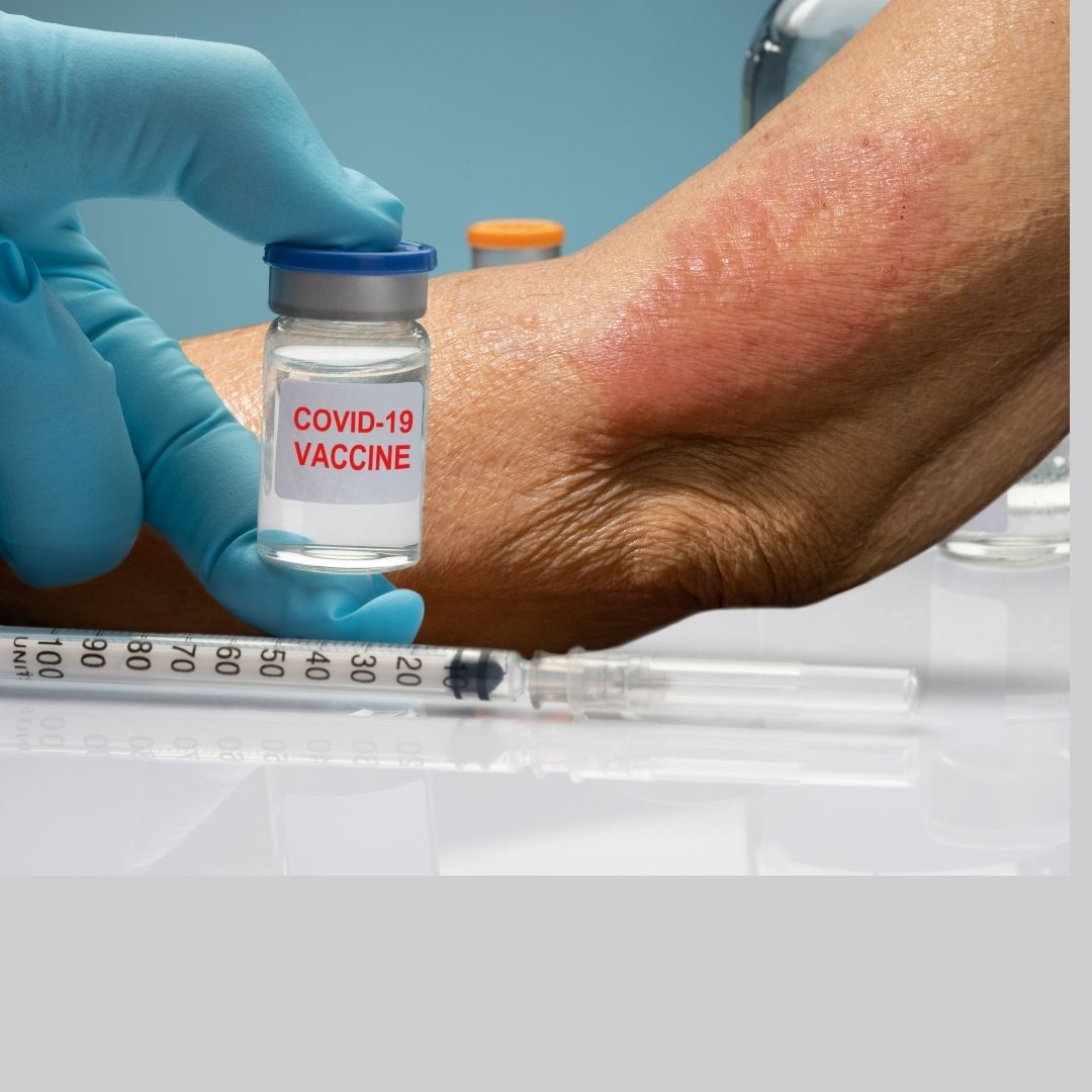 Does COVID vaccine cause any skin rash as a side effect ?