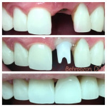 implants-10-400x400-1.jpg