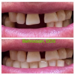 dentures-06-400x400.jpg