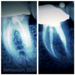 root-canals-06-400x400-1.jpg