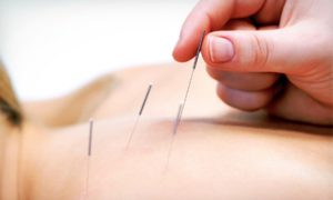 What Happens During an Acupuncture Treatment?