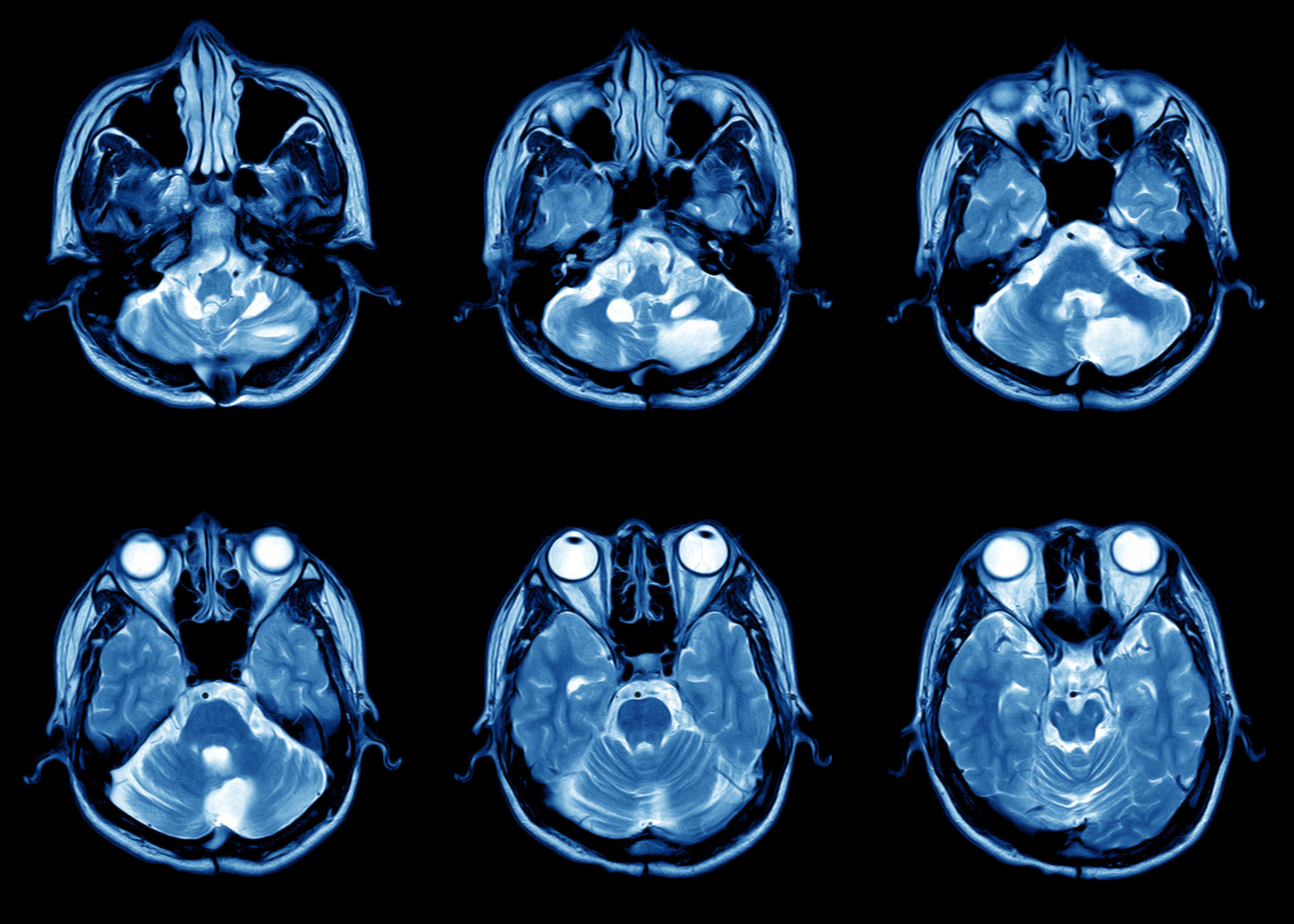Image of brain MRI scan