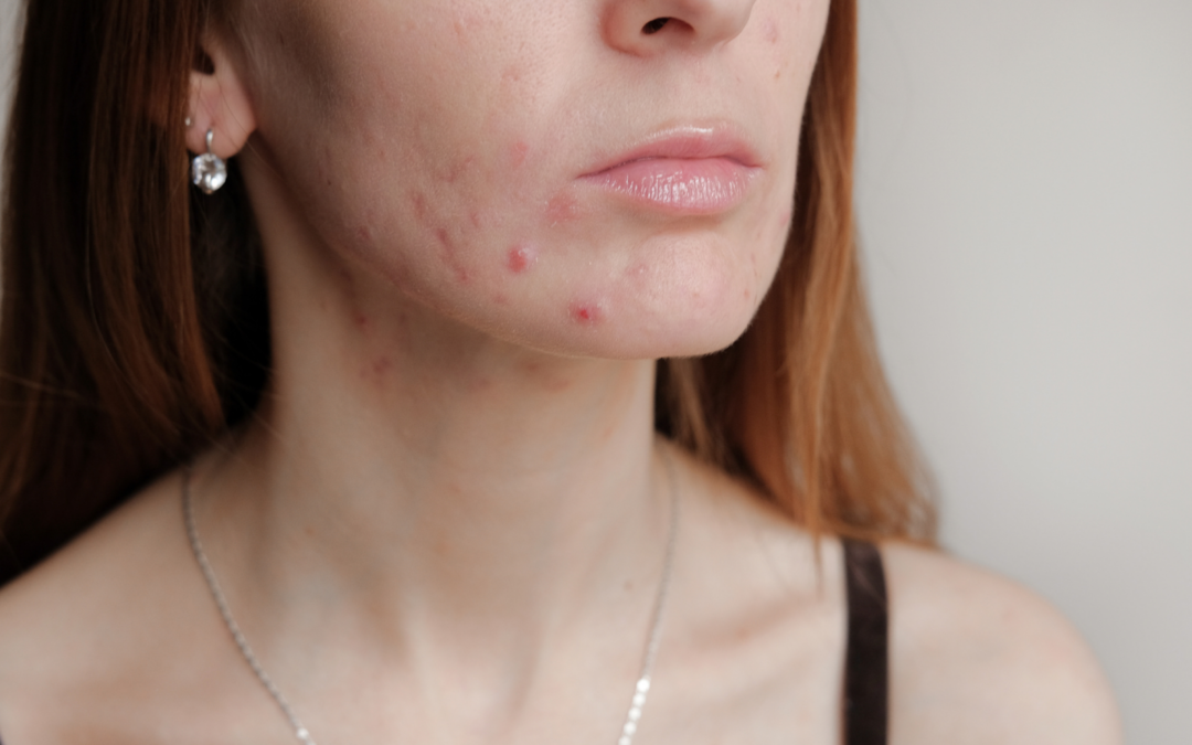 Why Do I Have Pregnancy Acne?