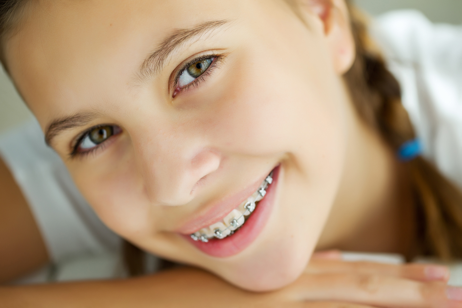 little girl smile with braces