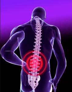 2014-05-chronic-failed-back-pain-236x300