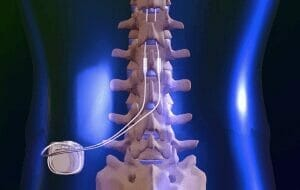 Spinal_Cord_Stimulator3