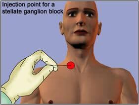 stellate-ganglion-block-2 (1)
