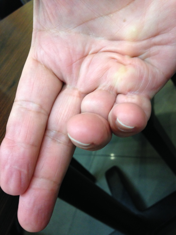 Dupuytren's contracture hand