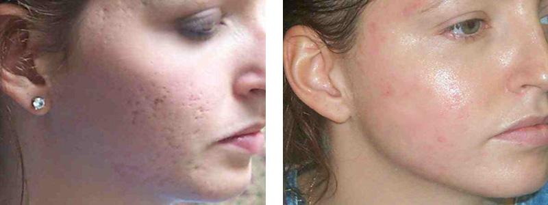 acne-scar-r-face