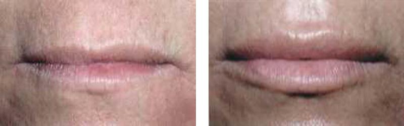 collagen-lip-copy