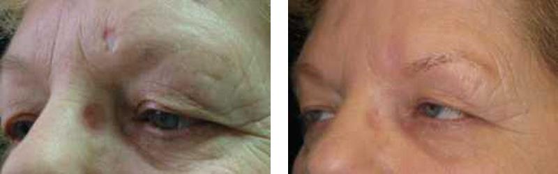 scar-revision-eye-brow-copy
