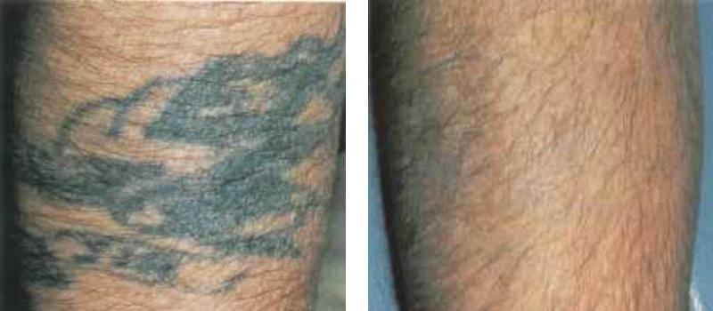 Tattoo Leg Copy 1