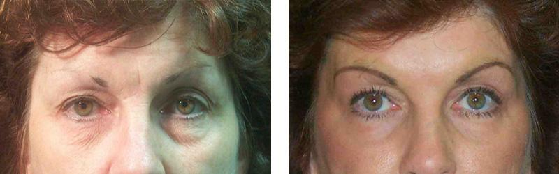 resurfacing-eyes-2