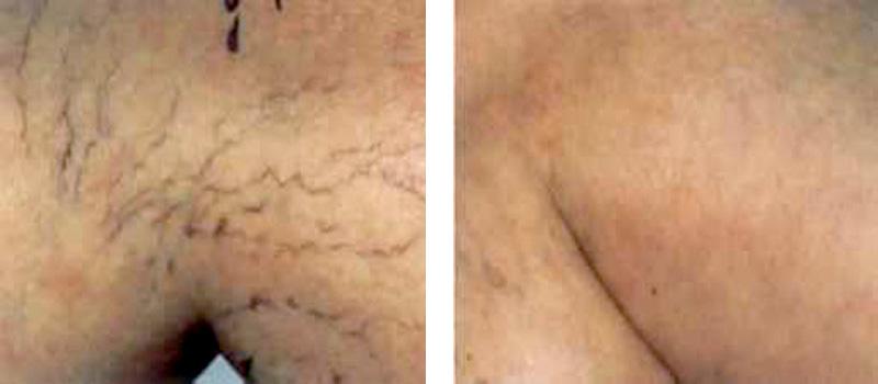 spider-vein-l-thigh 2