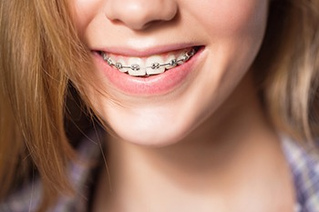 metal braces in rancho cucamonga