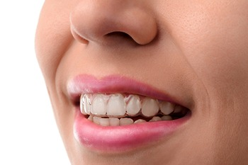 rancho cucamonga invisalign dentists