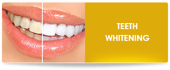 teeth whitening near ontario