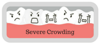 severe crowding
